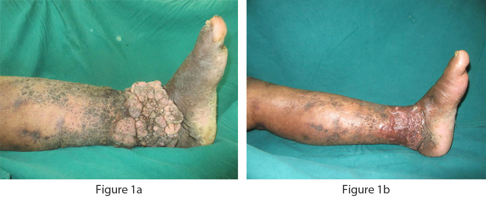 Showing lymphedema involving lower limb with skin changes. Wide excision and skin grafting done.