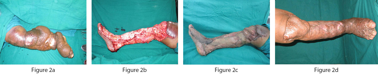 Lower limb showing Grade IV lymphedema with extensive skin changes. Patient underwent modified Charles procedure followed by skin grafting.